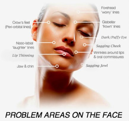 cosmetic acupuncture problems areas of the face